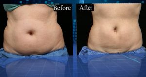 Fat Reduction Procedure